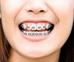 Abdominal pain now due to dental braces swallowed 10 years earlier: Case report