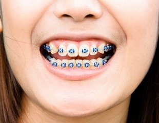 New research overturns the belief that braces boost self-confidence