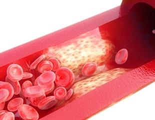Study reveals link between dietary potassium and vascular calcification