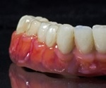 Dental Bridges - Advantages and Disadvantages