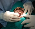 Recovery After Root Canal Treatment