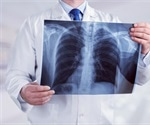 Walking Pneumonia: When to See a Doctor?