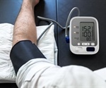 Cardiac monitoring foretells clinical deterioration in PAH