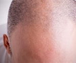 Study reveals link of male-pattern baldness and premature graying with early heart disease