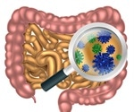 Small Intestinal Bacterial Overgrowth Diagnosis