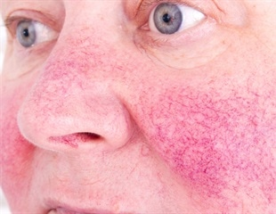 Rosacea and Small Intestinal Bacterial Overgrowth (SIBO)