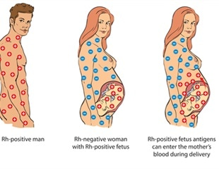 What is Rh Blood Group?