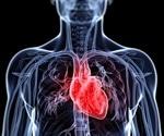 Broken Heart/Takotsubo Syndrome Cardiomyopathy