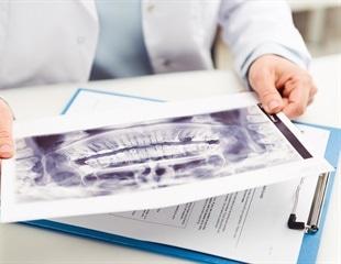 Dentigerous Cysts