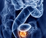 Researchers adopt new approach to treating advanced prostate cancer