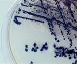 New Guidelines for Accurate Diagnosis of C. difficile Infection