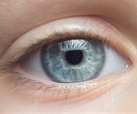 Biomarker for earlier diagnosis of neurodegenerative diseases detected in the eye