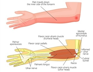 Compressed Ulnar Nerve