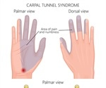 Pins and Needles and Carpal Tunnel Syndrome