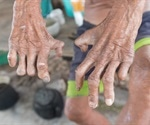 Mayo clinic researchers discuss local case studies of leprosy