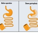 Complications of Sleeve Gastrectomy