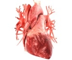 Blood proteins may be useful for predicting risk of developing heart failure