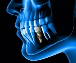 Researchers create new approach to reduce risk of dental implant failure
