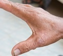 Study findings may help shed light on cause of systemic sclerosis