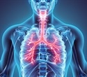 Rheumatoid arthritis may increase risk of developing COPD, research suggests