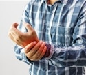 Study: Psoriasis patients taking Humira show no change in aortic inflammation