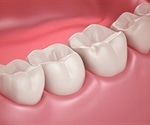 Researchers develop adhesive materials to prevent bracket stains on teeth