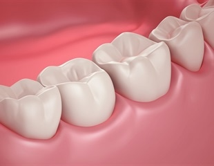 Study confirms link between protruding teeth and traumatic dental injuries