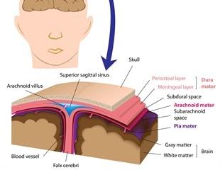 Symptoms of Rat Lungworm Disease