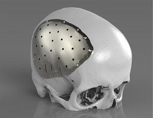 Renishaw to present latest developments in craniomaxillofacial implants at BAOMS