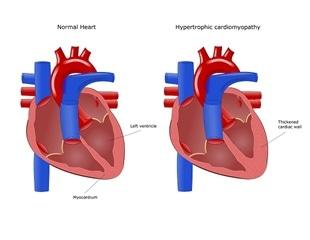 Genetic Mutation Associated with Hypertrophic Cardiomyopathy
