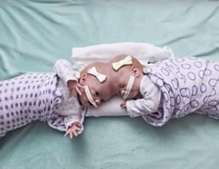 Twin girls joined at the head separated successfully by team of doctors at CHOP