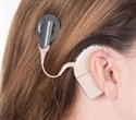 Children with cochlear implant learn words faster than kids with normal hearing