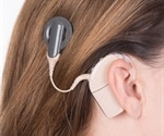 Cochlear implant early in life helps children with hearing loss to acquire language and communication skills
