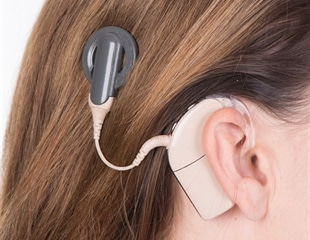 Research could pave way for personalized cochlear implants
