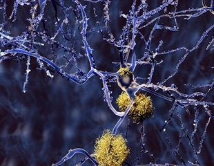 Study reveals early indication of Alzheimer's in adults with normal cognition