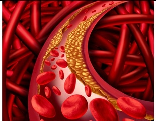 Study finds vaccine to lower cholesterol levels could also immunize against heart disease
