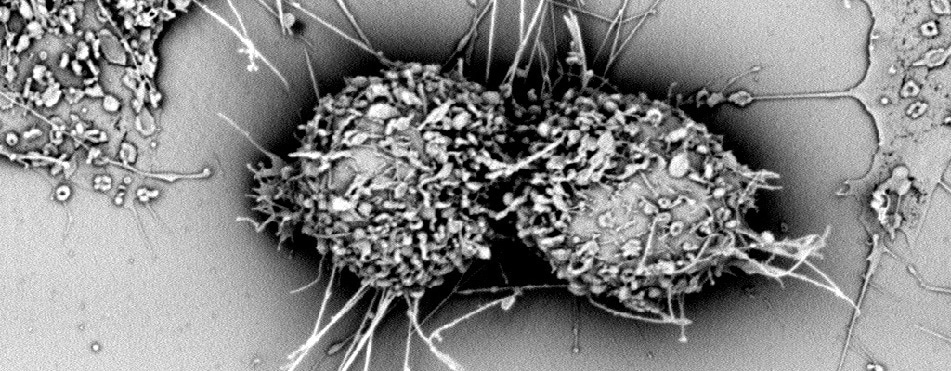 Applications of Scanning Electron Microscope in Pharmaceutical Research Field