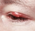 Blepharitis Types and Causes