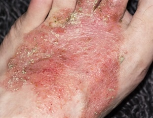 New hope for eczema from nitric oxide
