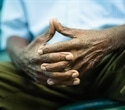Racial disparity in dementia risk, experts report