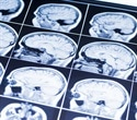 Study shows link between better diet quality and larger brain volume