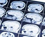 Researchers measure brain metabolite levels in people with mild memory problems