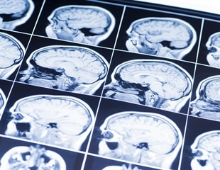 Researchers propose new model for studying age-related cognitive decline