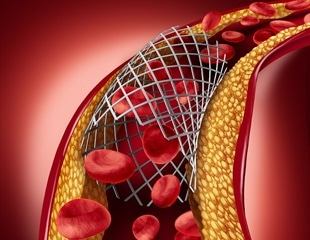 Erectile dysfunction drug may be used to coat stents in future heart surgeries