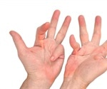 Dupuytren's Contracture (Palmar Fibromatosis)