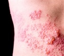 Shingles raises the risk for heart attack and stroke