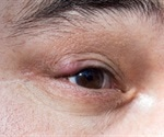 Blepharitis Complications