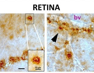 Retina scans could help identify Alzheimer's