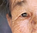Global blindness rates expected to soar within a few decades