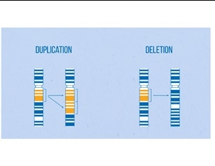 Researchers unravel genetic characteristics that increase risk of developing Tourette syndrome